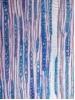 Präparation - Färben von Holzschnitten